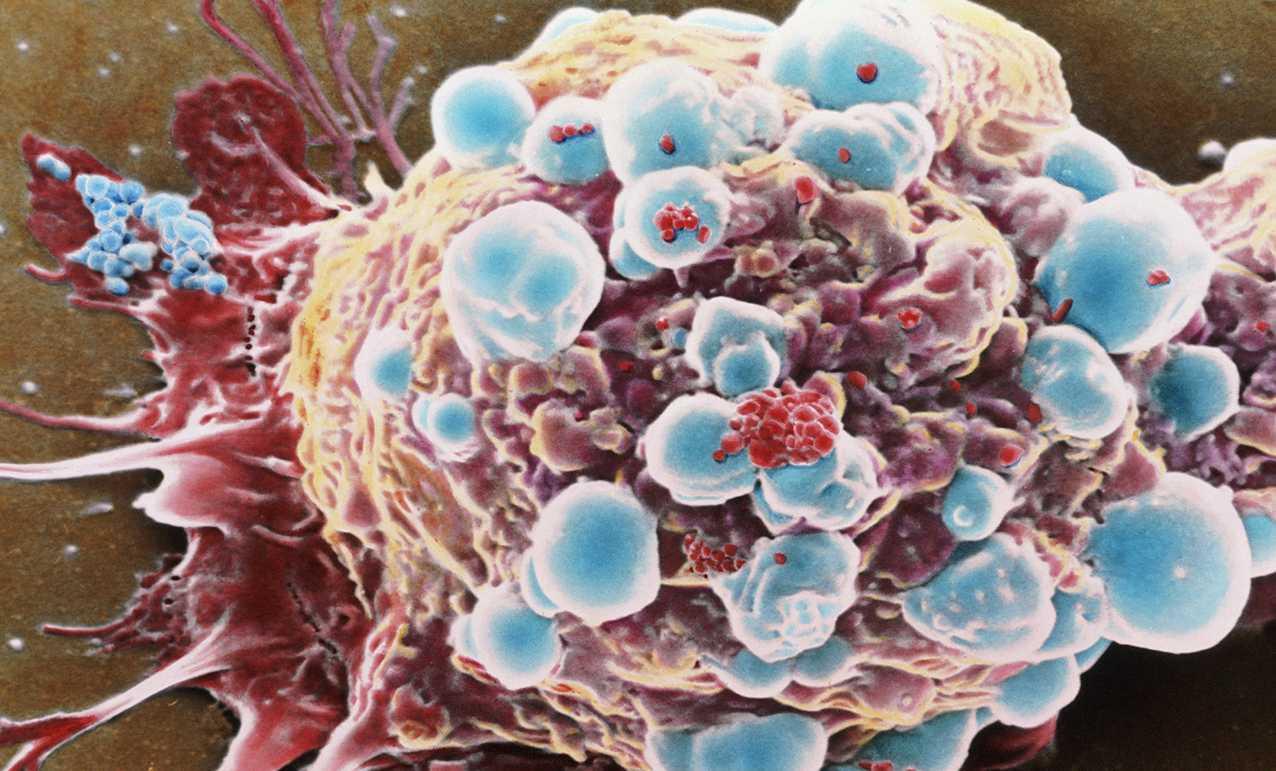 Tumori: scoperto un freno che blocca la metastasi