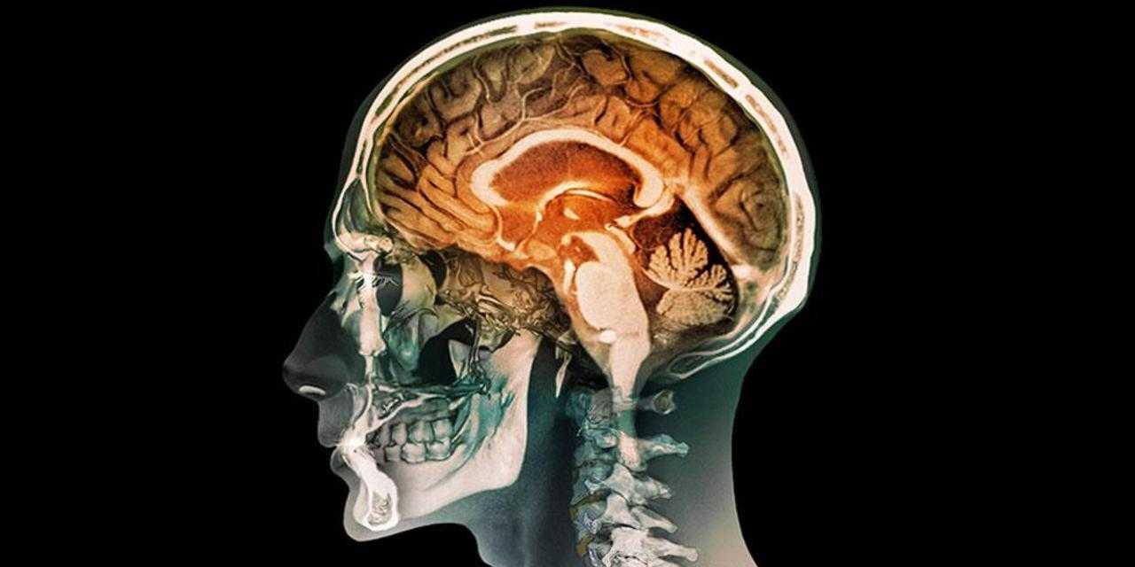 Cervello: programmato per l'autodistruzione, salvato dalla cultura