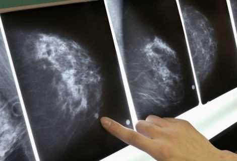Tumore al seno triplo negativo: la speranza di terapie mirate