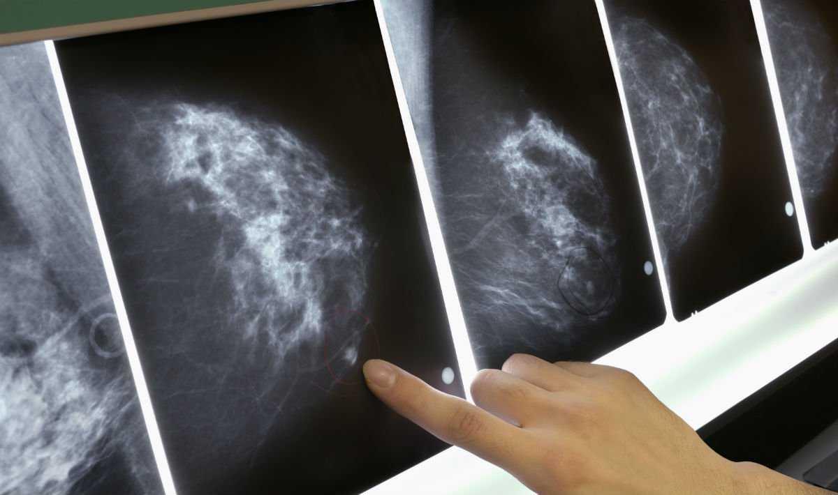 Medicina: scoperta in Italia una nuova cura per il tumore al seno