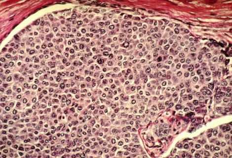Medicina: l'immunoterapia sconfiggerà i tumori entro il 2050