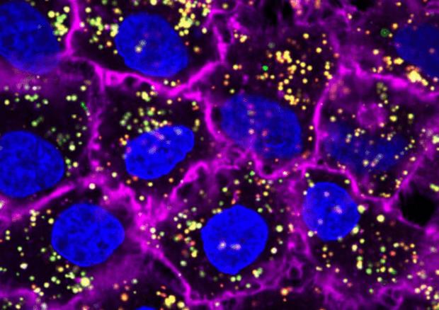 Scoperta la firma molecolare dei tumori: sarà più facile scovarli