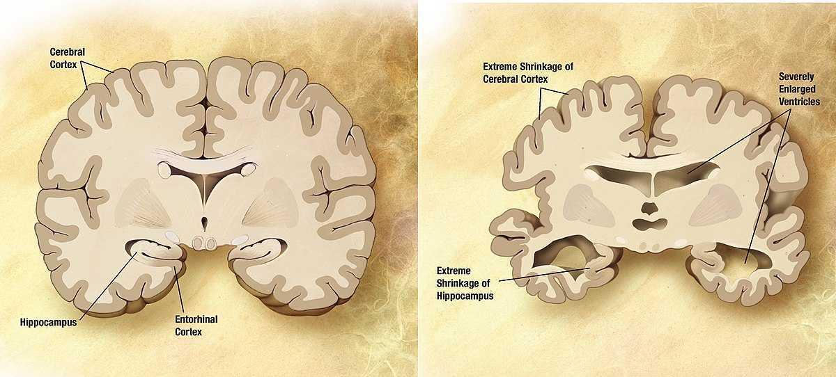 Cura Alzheimer: un farmaco elimina le placche | Medicina