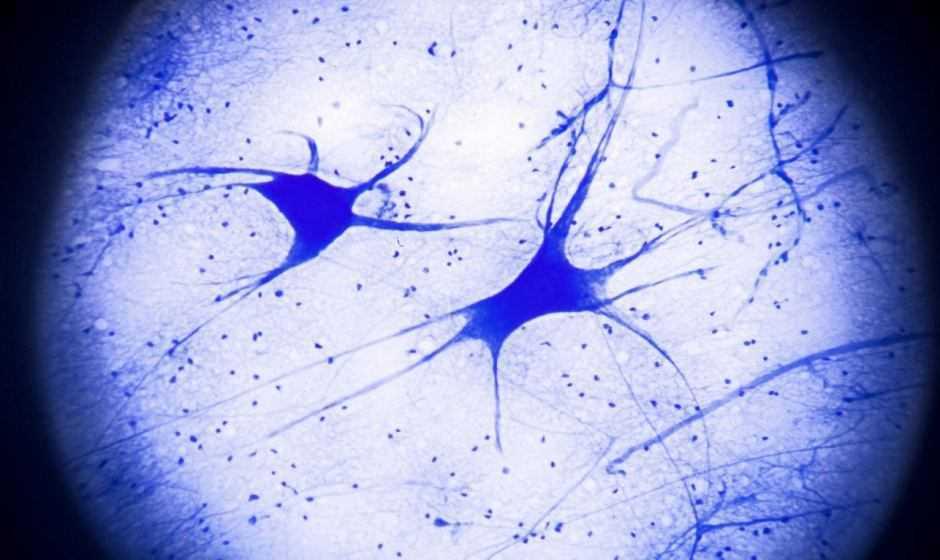 Medicina: dall'ictus all'Alzheimer, un esame del sangue universale per i danni al cervello
