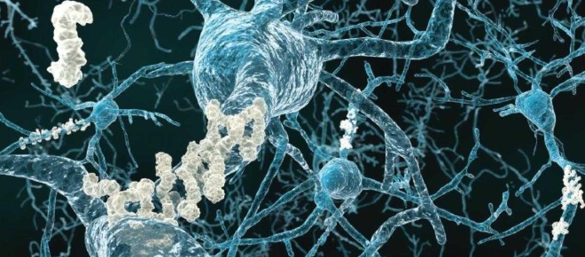 Biologia: distrutte con luce e suoni le placche dell'Alzheimer