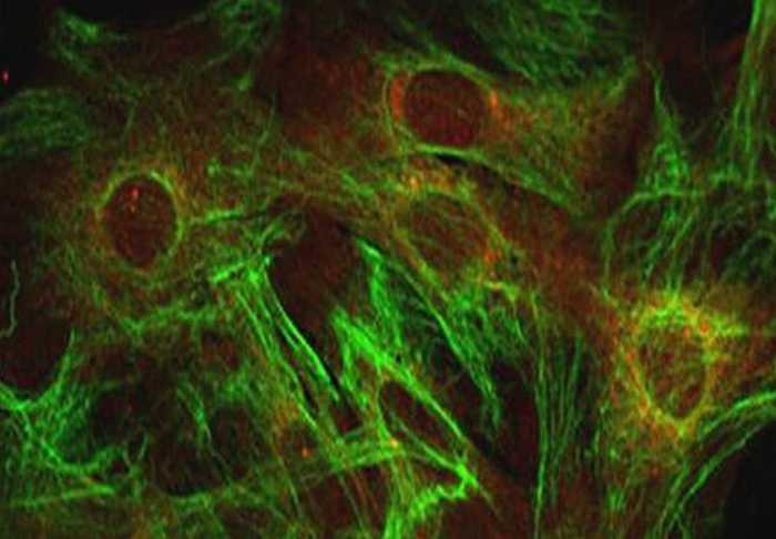 Medicina: una mappa genetica per capire la SLA