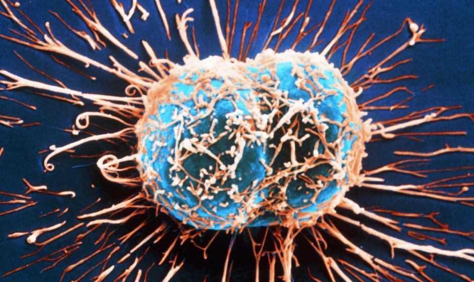 Tumori: due proteine sintetiche per nuove terapie