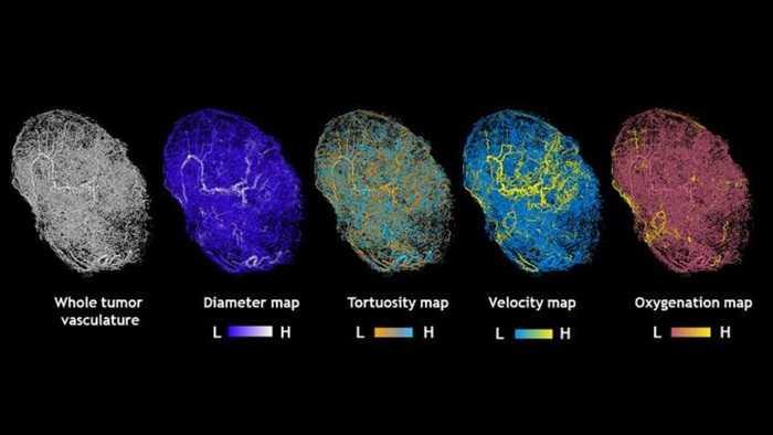 Medicina: è pronta una vera e propria Google Maps dei tumori