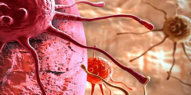 Tumore pancreas: cura riduce l'avanzare del tumore | Medicina
