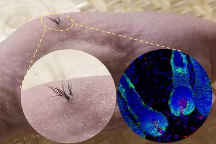 Calvizie: una cura a base di cellule staminali | Medicina