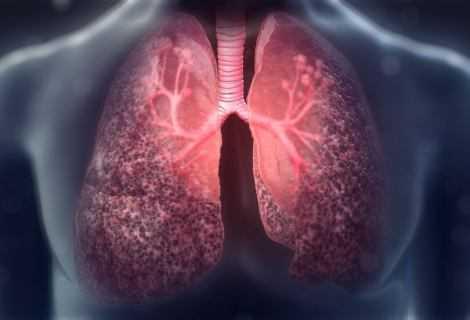 Fibrosi cistica: terapia genetica basata su CRISPR | Medicina