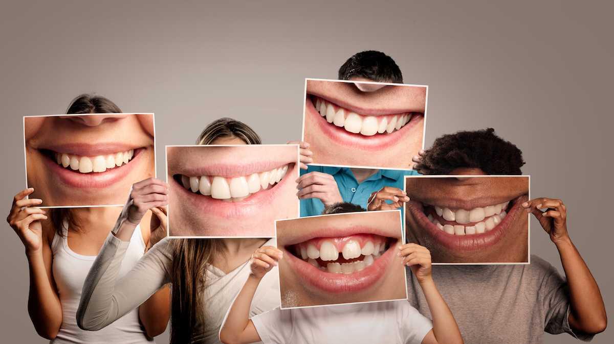 Dentiera addio: scoperto il gene che ripara i denti | Medicina