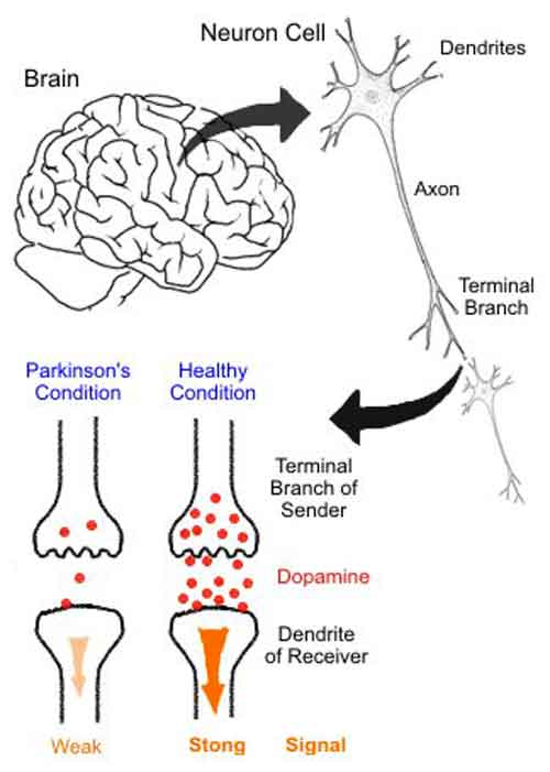 Morbo di Parkinson: un modo naturale di rallentarlo | Medicina