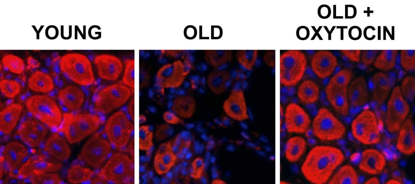 Ringiovanire le cellule: si potrà combattere l'invecchiamento   Biologia