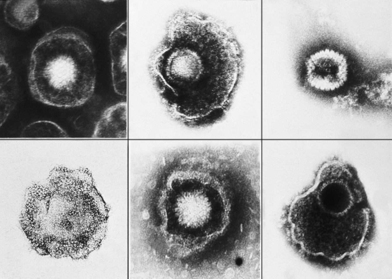 Cause sclerosi multipla: nuove prove contro l'herpes virus  | Medicina
