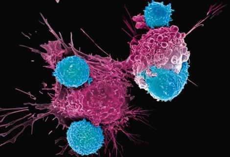 Cura tumore: testata per la prima volta la CRISPR | Medicina