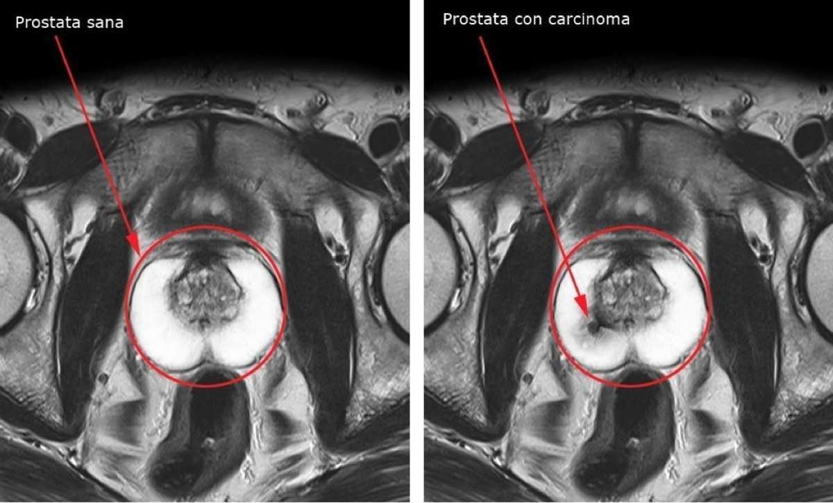 Tumore alla prostata: lo screening può salvare la vita? | Medicina