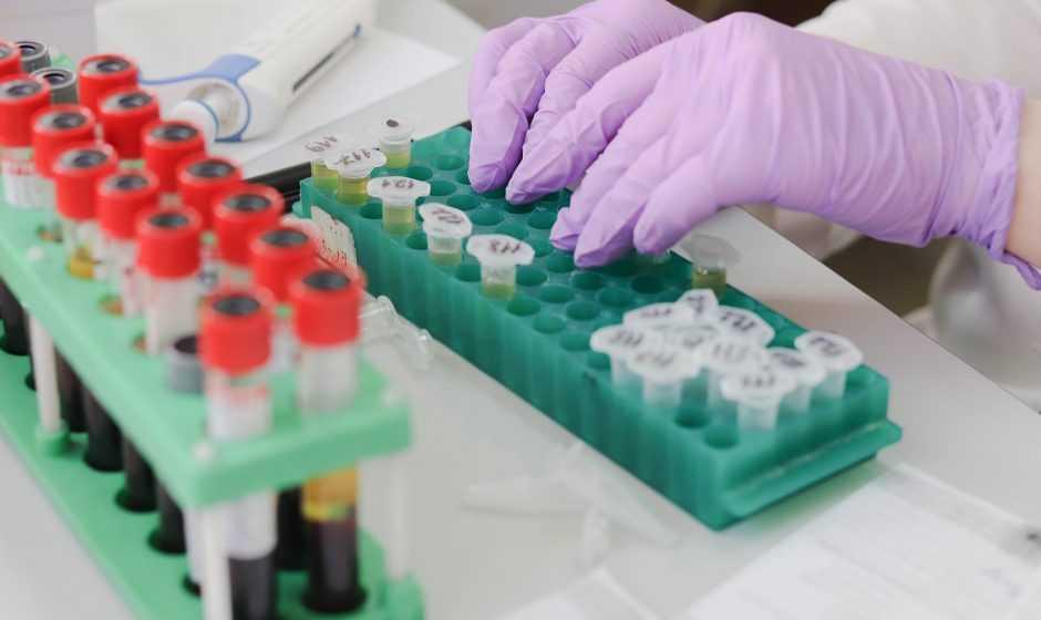 Tumori: un database per aiutare la ricerca di una cura | Medicina