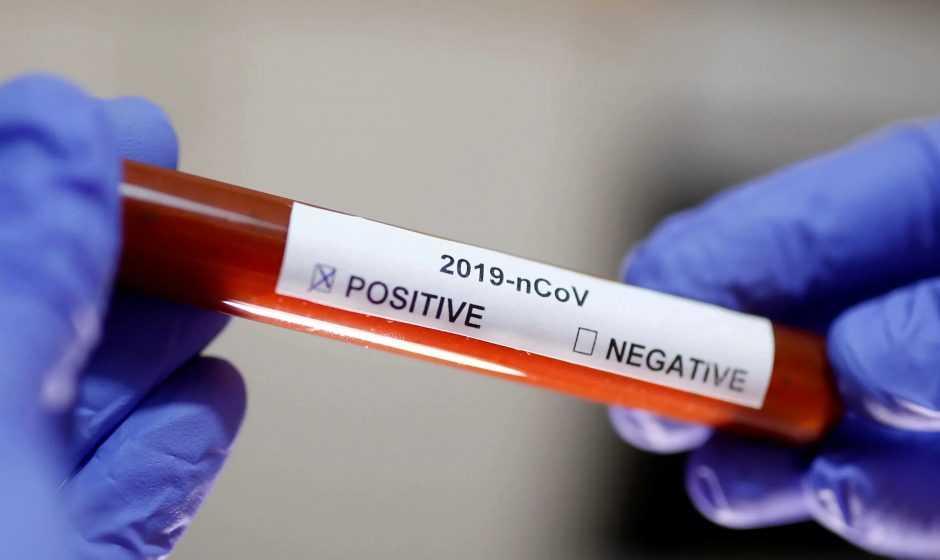 Coronavirus: ecco i geni che ne aumentano il rischio