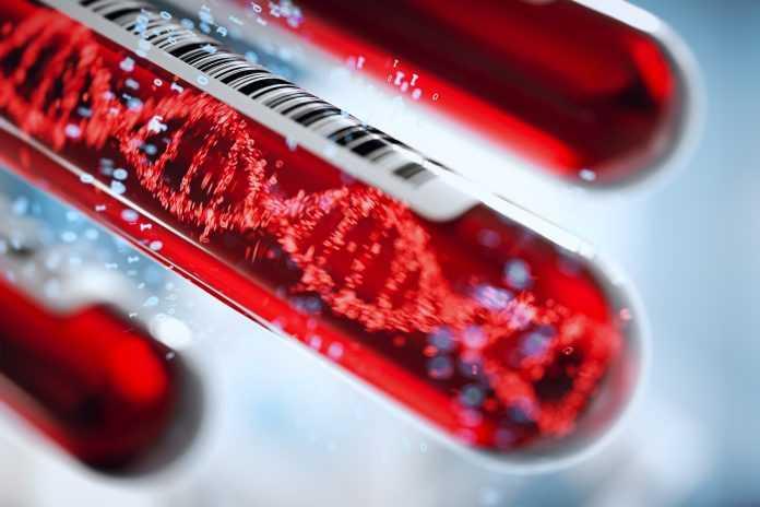 Tumori: un nuovo test del sangue ne rileva 50 | Medicina
