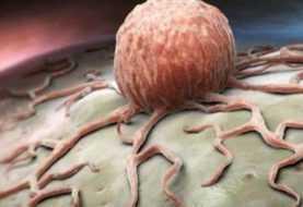 Tumori: rischio di sviluppare metastasi scritto nel Dna| Biologia