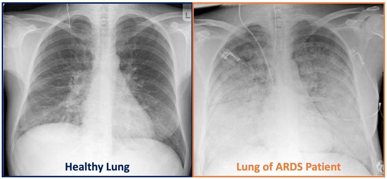 THC: potrebbe prevenire i sintomi di malattie polmonari