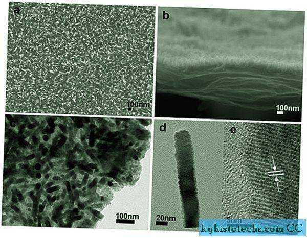 Fotosintesi: usare l'energia solare per produrre idrogeno combustibile