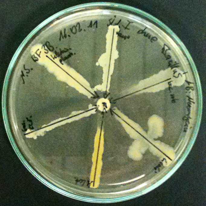 Antibiotico resistenza: un composto ad ampio spettro contro superbatteri
