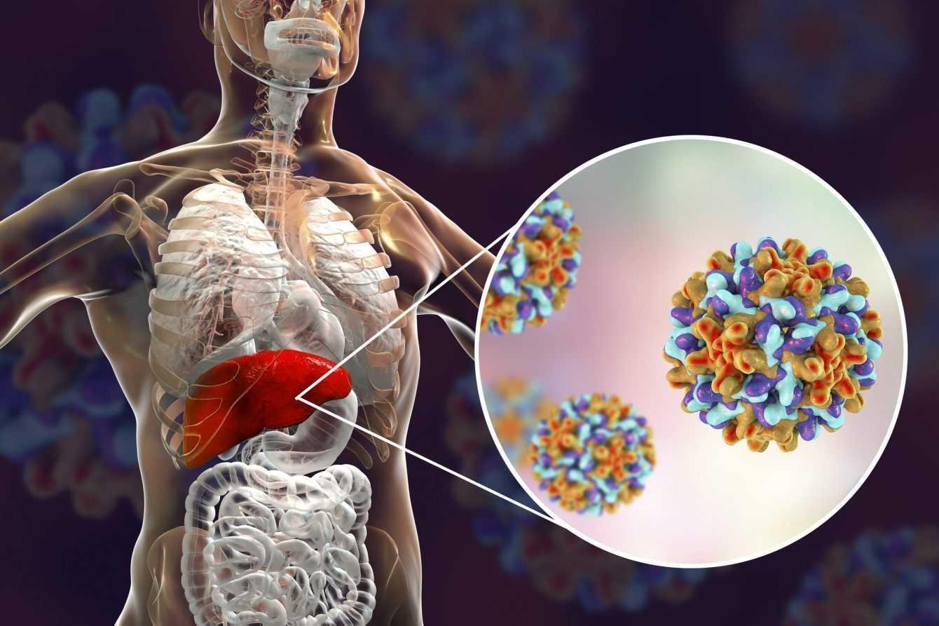 Epatite C: una promettente scoperta per curarla